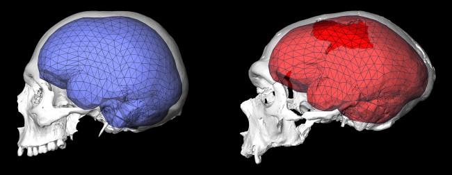 현생인류(왼쪽)과 네안데르탈인의 뇌 비교. 네안데르탈인이 크기는 더 크고 모양은 더 납작하다. - 막스플랑크 진화인류학연구소 제공